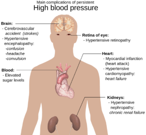 obesity-high-blood-pressure